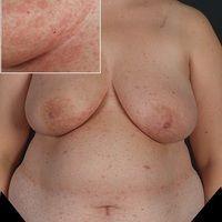 Pityriasis rosea. Stammbetontes, in den Spaltlinien angeordnetes, díchtes makulopapulöses Exanthe...