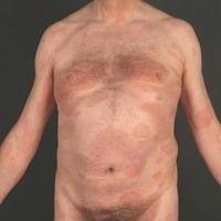 Parapsoriasis en plaques großherdige: symptomlose, mäßig scharf begrenzte, disseminierte Patches...