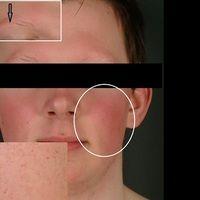Keratosis pilaris-Syndrom: auffällgie symmetrische Rötung beider Wangen. Ausgeprägtes Ulerythema...