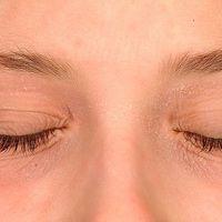 Atopische Liddermatitis: unscharf auf alle Lider begrenzte schuppende und juckende Dermatitis.Sa...