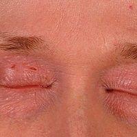 Atopische Liddermatitis: Schwer verlaufende, chronische,persistierende, atopische Dermatitis der...