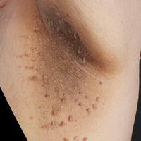 Fibroma molle bei Acanthosis nigricans