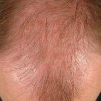 Alopecia androgenetica beim Mann. Stadium IV: Konfluenz der vorderen und hinteren Haarlichtung in...