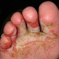 Fußinfekt, gramnegativer. Flächige,schmerzhafte Mazerationen an Zehen und Fußballen. Scharf begre...