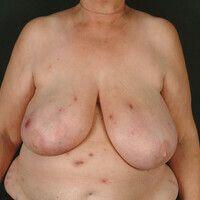 Furunkulose:rezidivierendeFurunkelbildung bei einer 66 Jahre alten Patientin mit Diabetes melli...