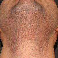 Folliculitis barbae: Eminent chronische therapieresistente (keine wesentliche Besserung unter sys...
