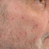 Folliculitis barbae: Chronische, therapieresistente, entzündliche, juckende (Läsionen weisen Krat...