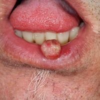 Granuloma pyogenicum (pyogenic granuloma): rasch wachsender, glänzender, erosiver Knotenan der U...