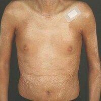 Graft-versus-Host-Disease, chronische.1,5 Jahre nach Stammzelltransplantation eintretende, großf...