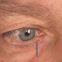 Apokrine Schweißdrüsenzyste am medialen Unterlidrand (durch Pfeil bezeichnet).