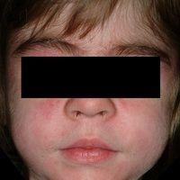 Erworbene generalsierte Hypertrichose nach langzeitiger Therapie mit Ciclosporin.