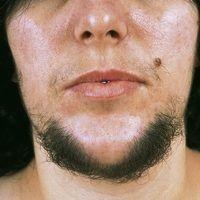 Hirsutismus. Ausgeprägtes, androgenabhängiges, männliches Behaarungsmuster (Terminalhaare) mit Be...