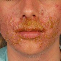 Herpes simplex disseminatus: ausgedehnte Herpes simplex Infektion der Perioralregion. Massive bak...