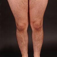 Hirsutismus. Ausgeprägtes, männliches Behaarungsmuster (Terminalhaare) bei einer ansonsten gesun...