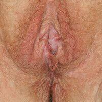 Kraurosis vulvae: Manifestation eines Lichen sclerosuder Vulva (kleine und große Labien, Klitor...