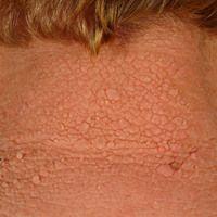 Leser-Trélat-Syndrom: seit2 Jahren plötzlich aufgetretene, flächig verruköse Hautbeschaffenheit...