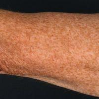Lentiginose: Solare Lentiginose durch exzessive UV-Exposition.
