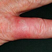 Mykobakteriose atypische: chronische, rote, im Zentrum verruköse, ansonsten oberflächenglatte, un...
