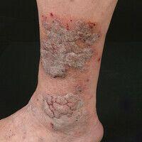 Angiokeratoma circumscriptum: Vaskuläre (venöse) Malformation der Haut (und Subkutis) mit umschri...