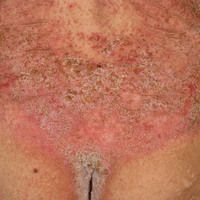 Dyskeratosis follicularis. Chronische auch die Rima ani betreffende (s. Detailaufnahme), intertri...