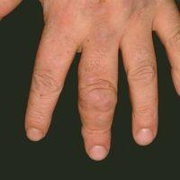 Granuloma anulare subcutaneum. Mulitple chronisch stationäre, feste, symptomlose, subkutan gelege...