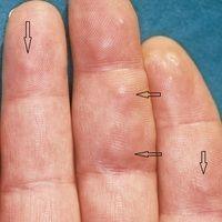 Granuloma anulare subkutaner Typ. Zahlreiche, mit Pfeilen markierte, schmerzlose, tief kutan gele...