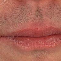 Cheilitis simplex nach Isotretinoin-Therapie wegen Acne vulgaris.