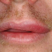 Cheilitis glandularis apostematosa: Ödematöse Cheilitis mikt deutlicher Schmerzhaftigkeit der Lip...