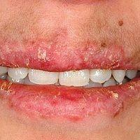Cheilitis simplex (DD): chronische Cheilitis bei chronisch diskoidem Lupus erythematodes.