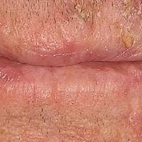 Cheilitis simplex: DD: aktinische Cheilitis