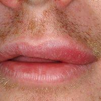 Cheilitis simplex: DD: Cheilitis glandularis