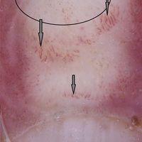 Chilblain-Lupus: Auflichtmikroskopie. Erweiterte, korkenzieherartige Gefäße (Pfeile)an der Dorsa...