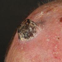 Cornu cutaneum auf dem Boden einer aktinischen Keratose. 75 Jahre alter Mann mit erheblicher akti...