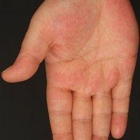 Erythromelalgie. Anfallsweise auftretende, sehr schmerzhafte, hyperämische, gerötete und geschwol...