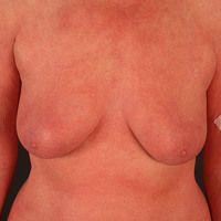 Erythrodermie (Übersicht): Erythrodermie bei Sézary-Syndrom