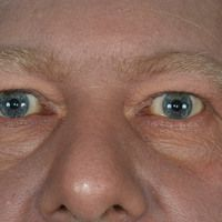 Melanom malignes (Übersicht): diffuse Melanose bei metastasiertem malignem Melanom.