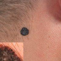 Melanom malignes (Übersicht): Seit Jahren bekannter kontinuierlich wachsender Knoten bei eime 43...