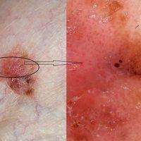 Melanom malignes (weitgehend amelanotisch): durch Abbau des Melanins nahezu pigmentfreier, sympto...
