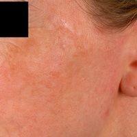 Melanodermatitis toxica. Chronisch stationäre (keine Wachstumsdynamik), großflächige, unscharf be...