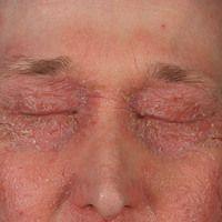 Ekzem, atopisches. Ausgeprägter symmetrischer Befall der Augenlider. Massiver permanenter Juckrei...
