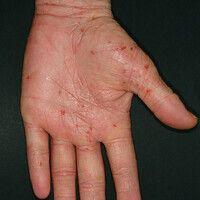 Ekzem atopisches (Übersicht): Flächige Rötung der Handfläche. Hyperlinearität. Disseminierte Eros...