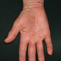 Ekzem atopisches (Übersicht): flächiger ekzematöser Befall der Handflächen. Hyperlinearität und L...