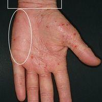 Ekzem atopisches (Übersicht): Chronisches atopishes Handekzem. Flächige Rötung der gesamten Hand...