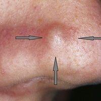 Nasenpapel, fibröse. Solitäre, seti Jahren bestehende, 0,5 cm durchmessende, scharf begrenzte, sy...