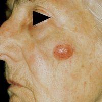 Merkelzell-Karzinom. Derber, verschieblicher, nicht schmerzender Tumor im Bereich der Wange bei ä...