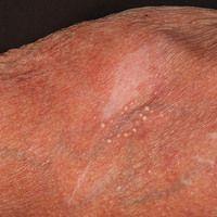 Milien: sekundäre Milien bei massiver Steroidatrophie der Haut.
