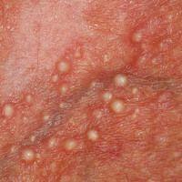 Milien: Sekundäre Milien bei Steroidatrophie der Haut (Detailaufnahme)