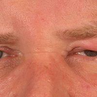 Melkersson-Rosenthal-Syndrom (monsymptomatische Form; hier Blepharitis granulomatosa): zunächst r...