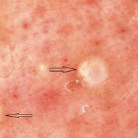 Milien. Auflichtmikroskopie: Milien im Wangenbereich. Weißliche, perlmutterfarbene Rundherde (mit...