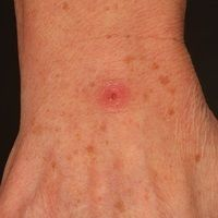 Mykobakteriose atypische: chronischer (seit etwa 8 Wochen bestehender, insuffizient vorbehandelt...